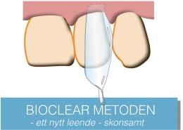 bioclearweb.001